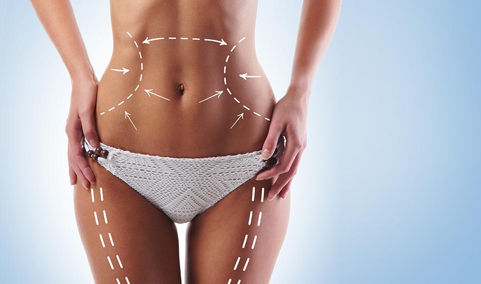Lazer-liposuction